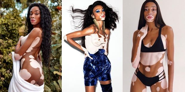 The Woman Who Makes The Perception Of Beauty Winnie Harlow 1
