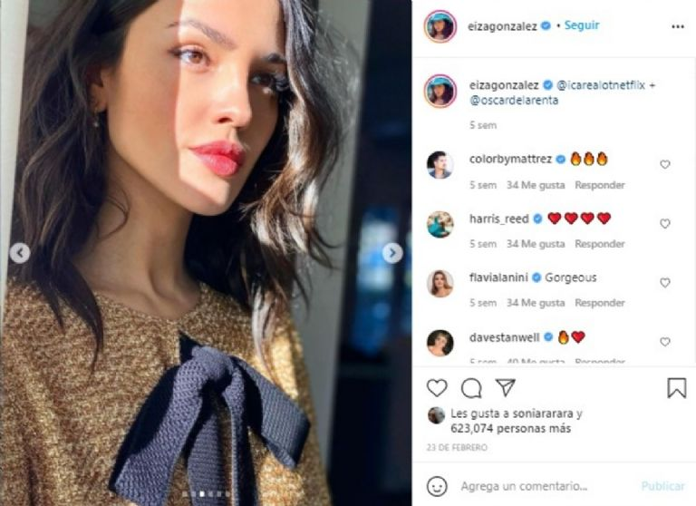 This is how Eiza Gonzalez and Lele Pons looked before their nose surgery 2