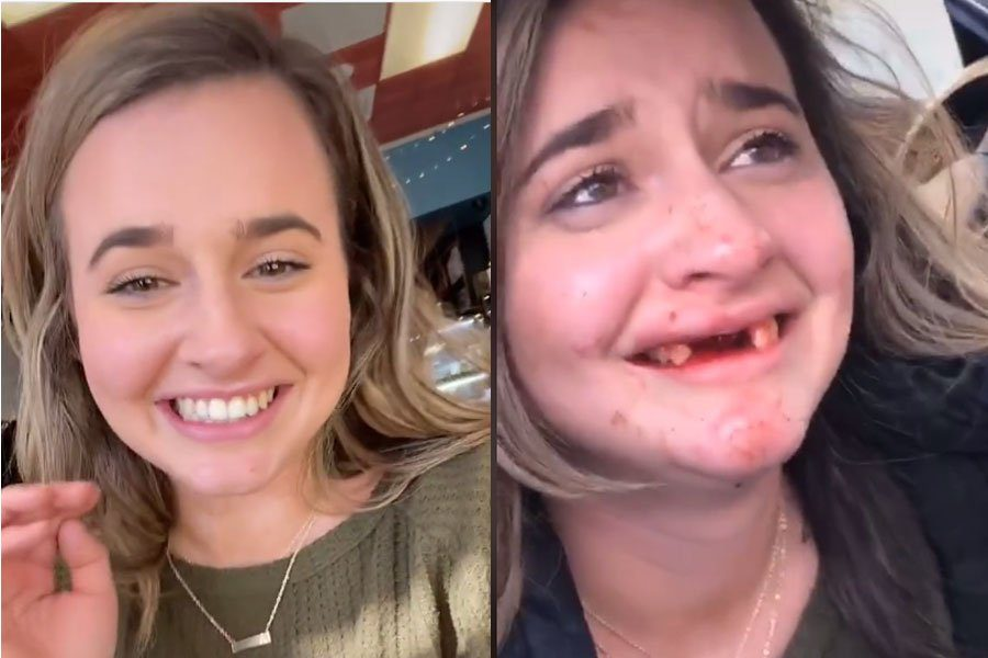 Tiktok user autumncathey6 lost her teeth after interesting events 1