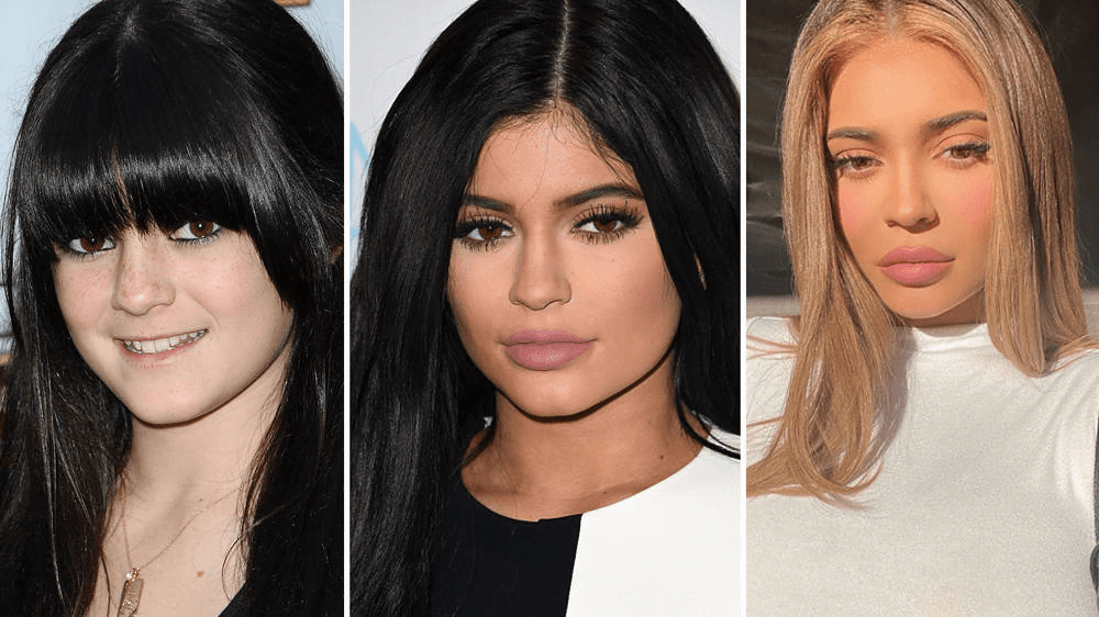 Kylie Jenner s Surprising Before and After Change 1