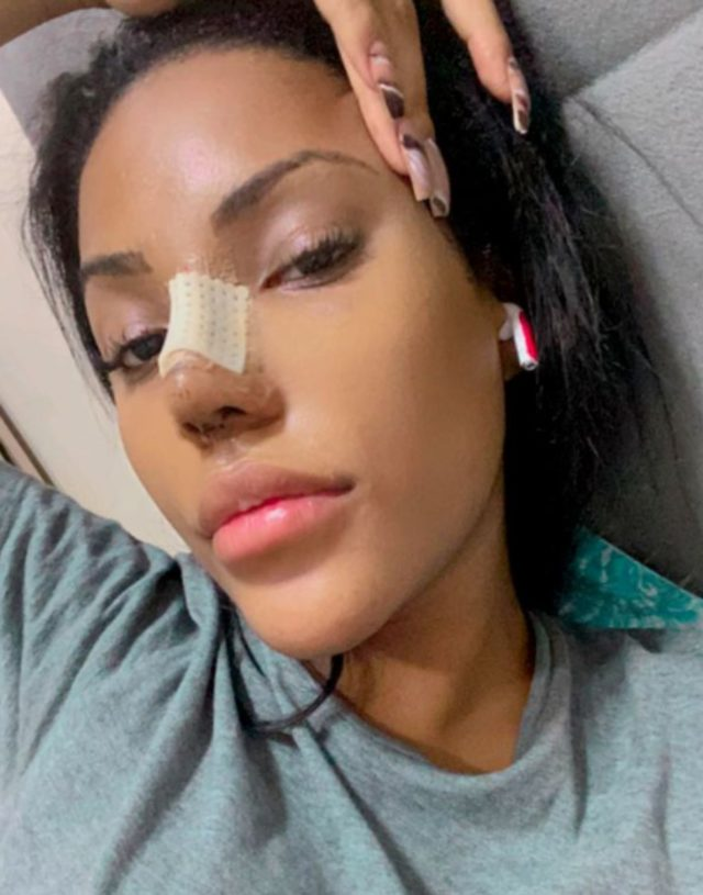 Ana Carolina Lekker is on the agenda with her plastic surgery operations 1